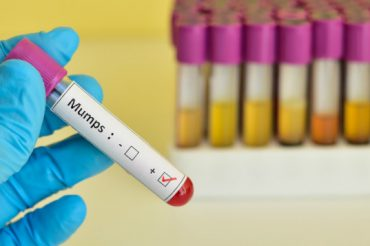 Manitoba mumps outbreak 100 times higher than normal