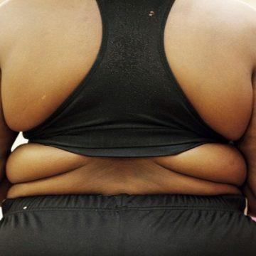 Deux études mettent à mal la théorie d'un bienfait de l'obésité