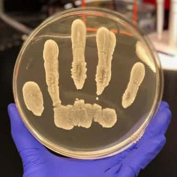 Common human skin bacteria could protect against cancer, say researchers