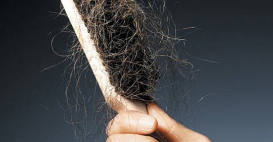How much hair loss is normal ? And what you probably don't know