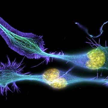 Scientists find very young cells in even very old brains
