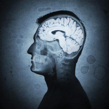 VIH : le traitement précoce pour prévenir l'atrophie cérébrale