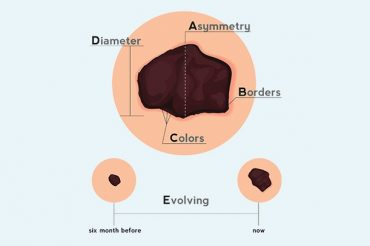 Melanoma signs and symptoms: early detection is key