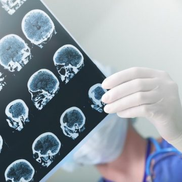Stroke may double risk for dementia, study says