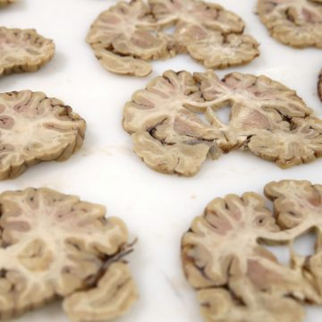 """An organ once deemed """"useless"""" may play a role in Parkinson's disease"""