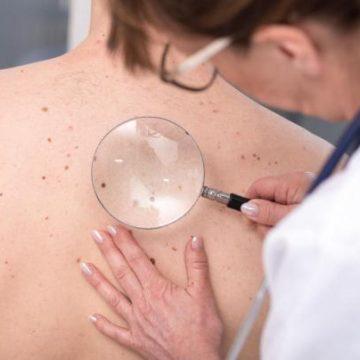 Mélanome : le cancer qui touche de plus en plus d'hommes