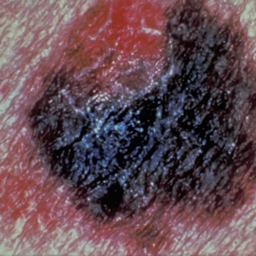 Global skin cancer deaths rising for men, but not women, study says