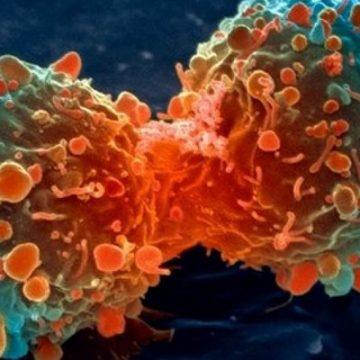 Des scientifiques découvrent comment recruter et reprogrammer des cellules de la peau pour lutter contre le cancer