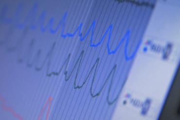 Les crises cardiaques sont de plus en plus fréquentes chez les jeunes