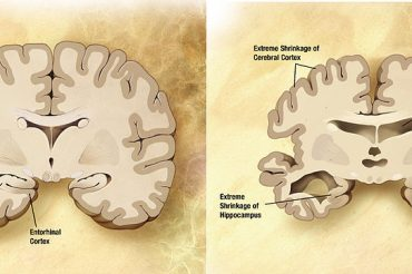Blood test is 94% accurate at identifying early Alzheimer's disease