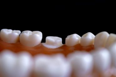People with gum disease more likely to have high blood pressure