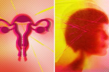 Hysterectomy linked to increased risk for depression, other mood disorders, says study