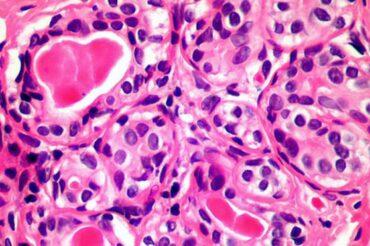 Cette cellule de notre sang pourrait nous aider à soigner tous les cancers