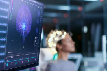 Scans show covid-19 patients experience wide variety of brain abnormalities