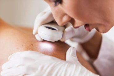 New gel treatment shows promise for skin cancer