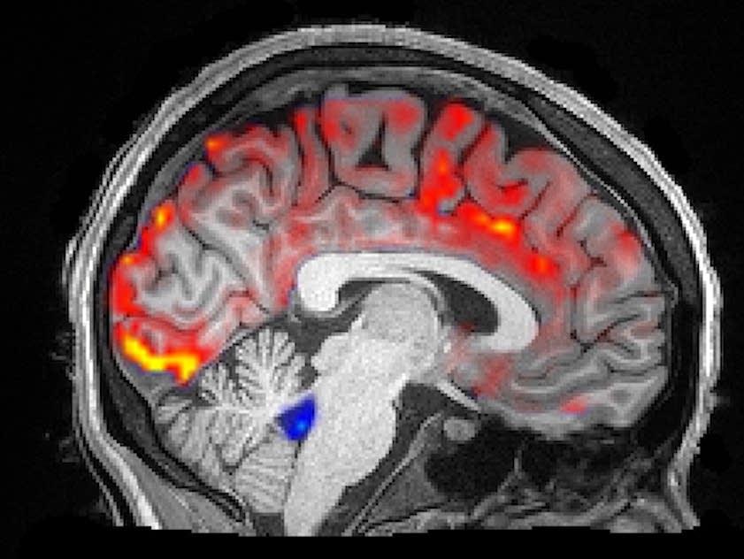How deep sleep may help the brain clear Alzheimer's toxins ...