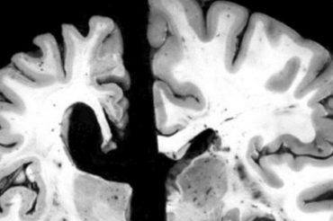 Le lien entre l'alzheimer et le microbiote intestinal confirmé
