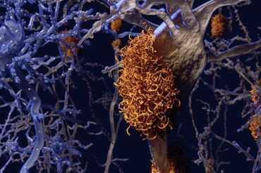 Scientists have identified four distinct types of Alzheimer's
