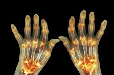 Imbalances in mouth microflora may indicate developing rheumatoid arthritis