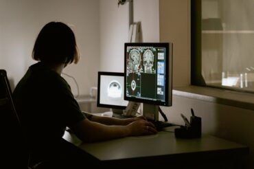 COVID-19 survivors may experience loss of brain tissue, according to new data